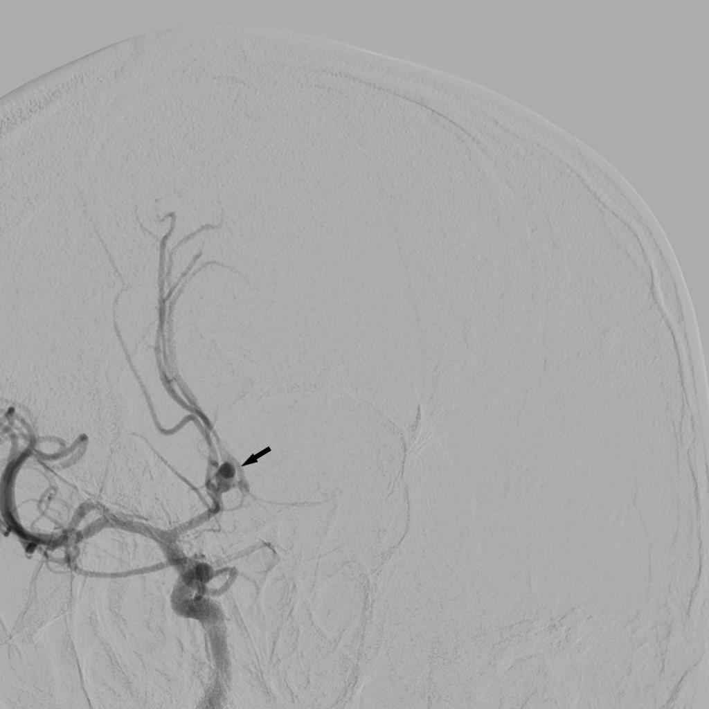 Клінічний випадок кліпування аневризми головного мозку